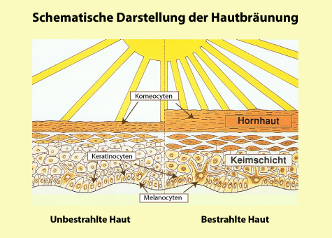 Haut-Hautbr-unung